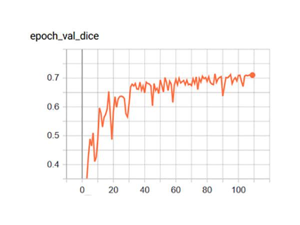 Dice Loss der Reimplementierung - Kaggle Challenge